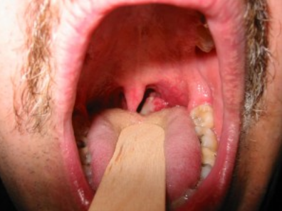 Hpv throat cancer stories, Prevalence of hpv throat cancer